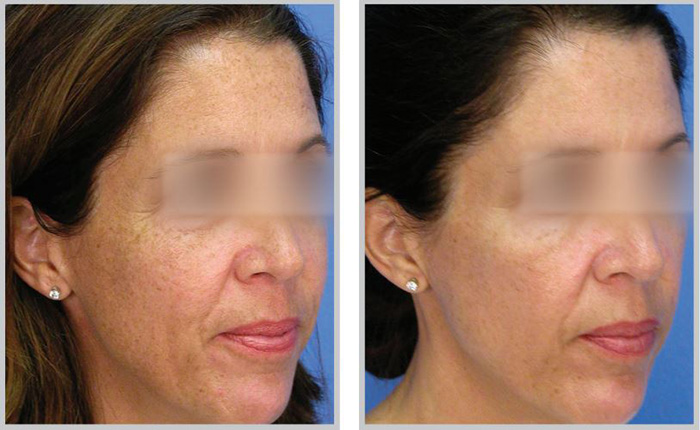 Ultimate Anti Aging Combination Laser Treatments Premier