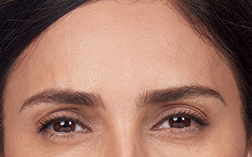 botox forehead after